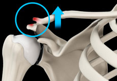 AC Joint Dislocation/Acromioclavicular Joint Dislocation
