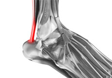 Tendinopathies